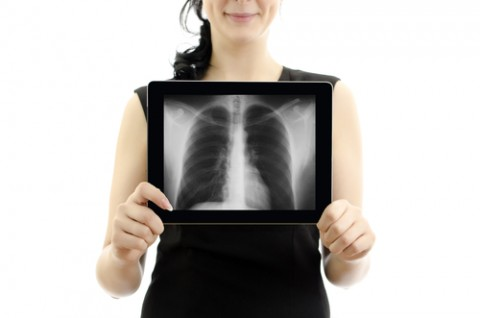 Woman holding tablet pc. Conept: X-ray with lungs. Isolated on white.
